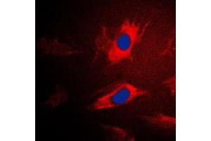 Image no. 1 for anti-Isoleucyl-tRNA Synthetase 2, Mitochondrial (IARS2) (N-Term) antibody (ABIN2707584)