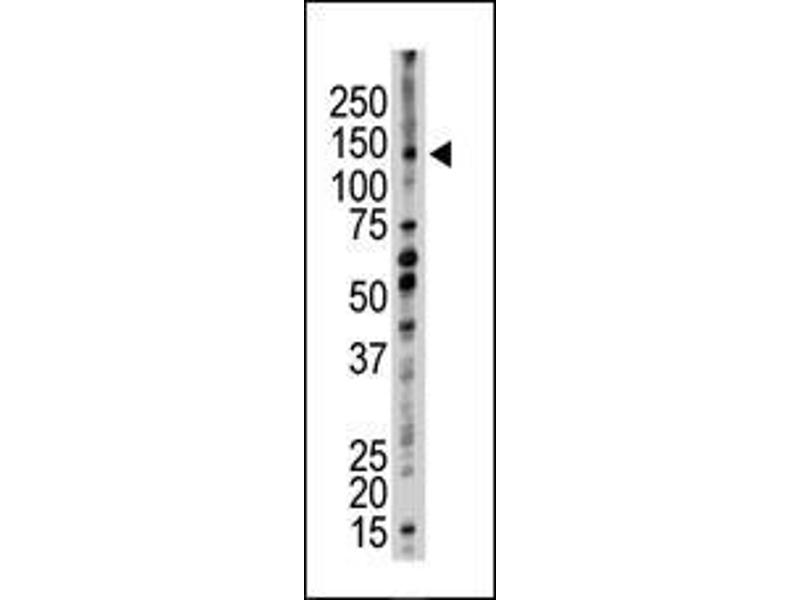 Western Blotting (WB) image for anti-Ubiquitin Conjugation Factor E4 B (UBE4B) (AA 112-142), (N-Term) antibody (ABIN388841)