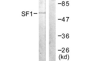 Image no. 2 for anti-Splicing Factor 1 (SF1) (Ser82) antibody (ABIN1847974)
