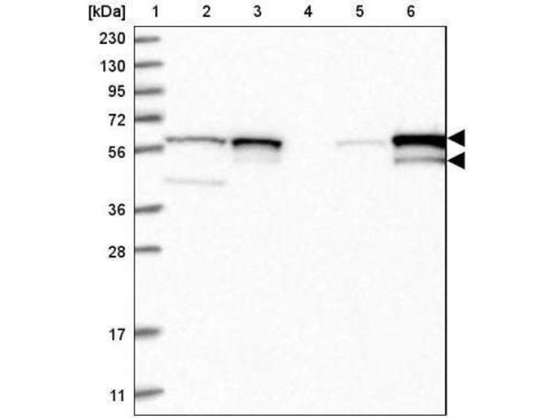 Western Blotting (WB) image for anti-FYN antibody (FYN Oncogene Related To SRC, FGR, YES) (ABIN4312914)