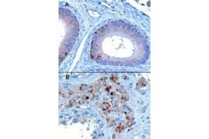 Immunohistochemistry (IHC) image for anti-Vacuolar Protein Sorting 35 Homolog (S. Cerevisiae) (vps35) (C-Term) antibody (ABIN185182)
