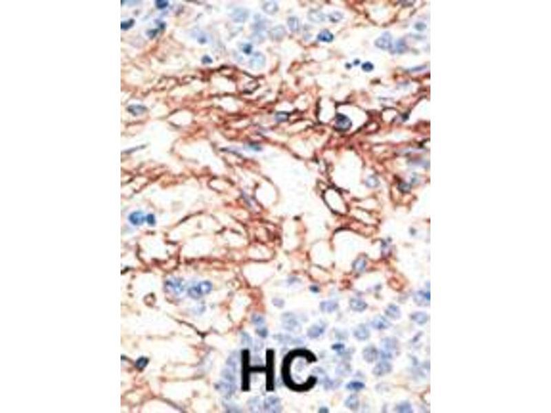 Immunohistochemistry (IHC) image for anti-Apolipoprotein B MRNA Editing Enzyme, Catalytic Polypeptide-Like 3G (APOBEC3G) (AA 5-35), (N-Term) antibody (ABIN388140)