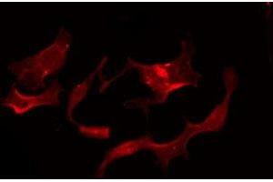 Image no. 1 for anti-G Protein-Coupled Receptor 119 (GPR119) antibody (ABIN6257207)
