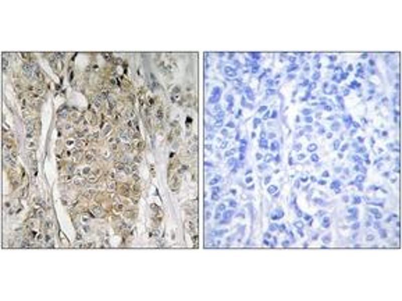Immunohistochemistry (IHC) image for anti-V-Erb-B2 erythroblastic Leukemia Viral Oncogene Homolog 2, Neuro/glioblastoma Derived Oncogene Homolog (Avian) (ERBB2) (AA 641-690) antibody (ABIN1534423)