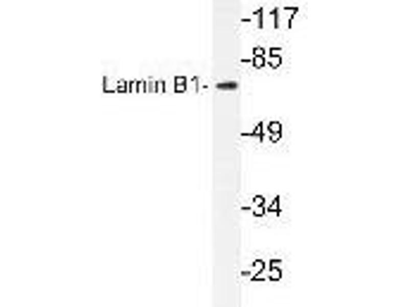 Western Blotting (WB) image for anti-Lamin B1 antibody (LMNB1) (ABIN446989)