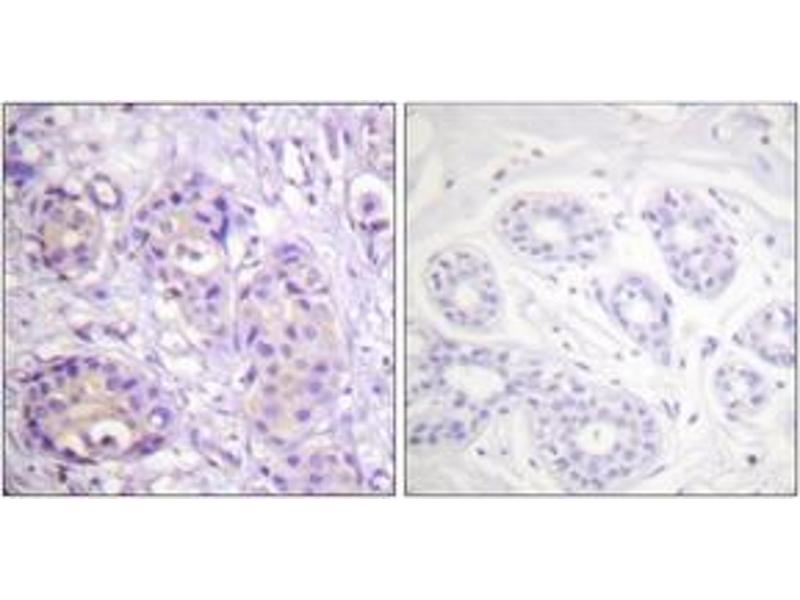 Immunohistochemistry (IHC) image for anti-Inhibitor of kappa Light Polypeptide Gene Enhancer in B-Cells, Kinase beta (IKBKB) (AA 166-215), (pTyr199) antibody (ABIN1531325)