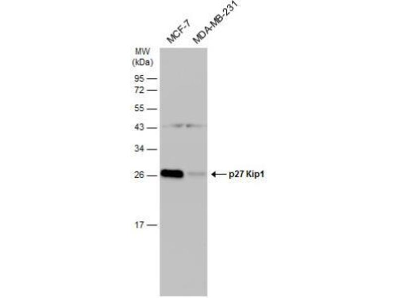 Western Blotting (WB) image for anti-Cyclin-Dependent Kinase Inhibitor 1B (p27, Kip1) (CDKN1B) (Center) antibody (ABIN442186)