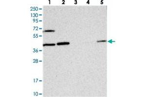 Image no. 1 for anti-COP9 Constitutive Photomorphogenic Homolog Subunit 4 (Arabidopsis) (COPS4) antibody (ABIN5575842)