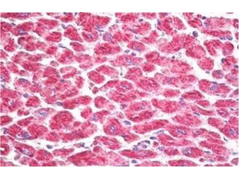 Immunohistochemistry (Paraffin-embedded Sections) (IHC (p)) image for anti-Ribosomal Protein S6 Kinase, 90kDa, Polypeptide 5 (RPS6KA5) (Internal Region) antibody (ABIN5611614)