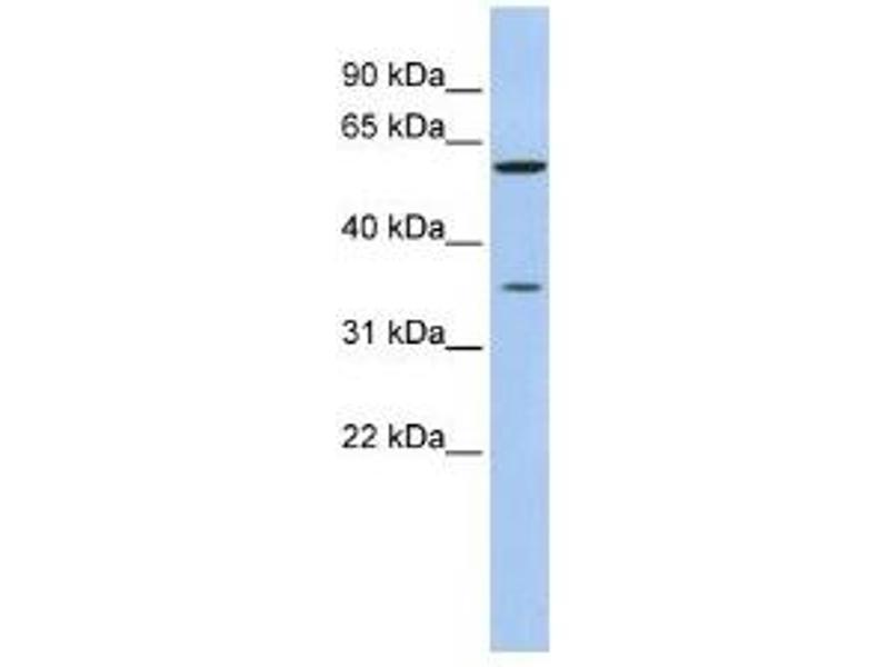 Western Blotting (WB) image for anti-Aldo-Keto Reductase Family 1, Member B1 (Aldose Reductase) (AKR1B1) (N-Term) antibody (ABIN4890159)