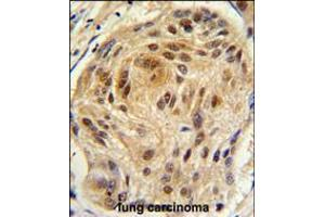 Image no. 2 for anti-LSM1 Homolog, U6 Small Nuclear RNA Associated (S. Cerevisiae) (LSM1) (AA 103-133), (C-Term) antibody (ABIN5536371)