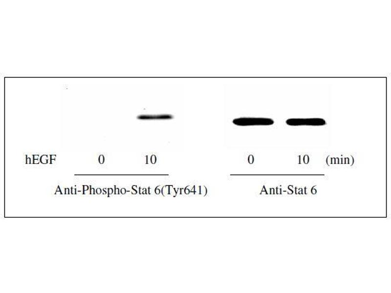 Signal Transducer and Activator of Transcription 6, Interleukin-4 Induced (STAT6) ELISA Kit (5)