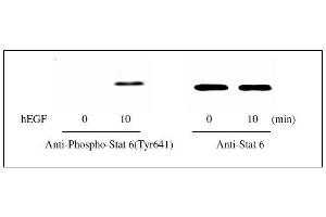 Western Blotting (WB) image for Signal Transducer and Activator of Transcription 6, Interleukin-4 Induced (STAT6) ELISA Kit (ABIN1981845)