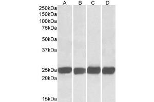 Western Blotting (WB) image for anti-Growth Factor Receptor-Bound Protein 2 (GRB2) (C-Term) antibody (ABIN2562931)