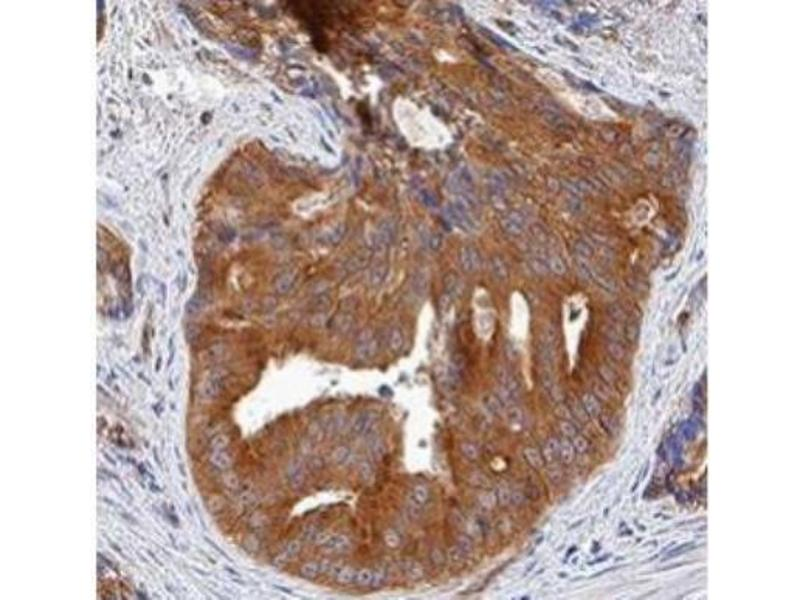 Immunohistochemistry (Paraffin-embedded Sections) (IHC (p)) image for anti-Cyclin-Dependent Kinase 2 (CDK2) antibody (ABIN251166)