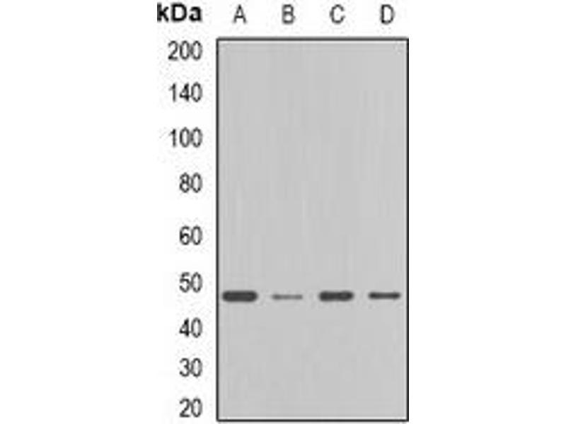 Western Blotting (WB) image for anti-Farnesyl-Diphosphate Farnesyltransferase 1 (FDFT1) antibody (ABIN2966630)
