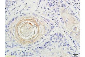 Immunohistochemistry (Paraffin-embedded Sections) (IHC (p)) image for anti-IL17A antibody (Interleukin 17A) (AA 40-80) (ABIN677933)