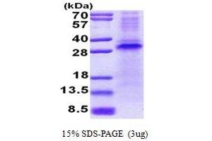 Image no. 1 for Ring Finger and CHY Zinc Finger Domain Containing 1, E3 Ubiquitin Protein Ligase (RCHY1) (AA 1-261) protein (His tag) (ABIN5853062)
