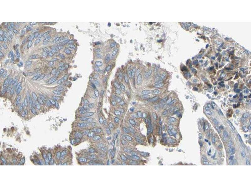Image no. 3 for anti-Cytochrome C Oxidase Subunit II (COX2) antibody (ABIN6269418)