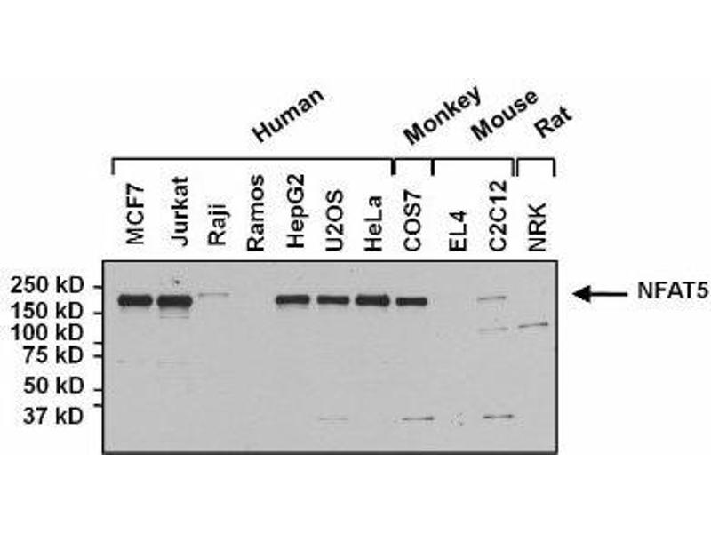 Western Blotting (WB) image for anti-NFAT5 antibody (Nuclear Factor of Activated T-Cells 5, Tonicity-Responsive) (ABIN267152)