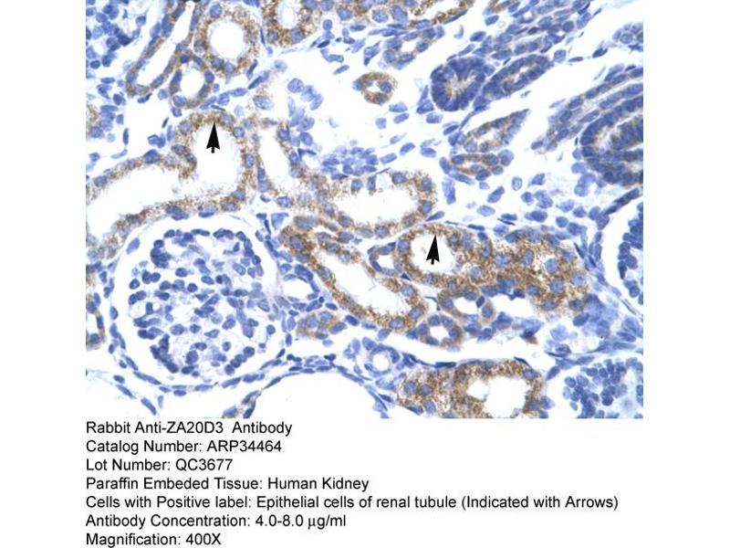 Immunohistochemistry (IHC) image for anti-Zinc Finger, AN1-Type Domain 6 (ZFAND6) (Middle Region) antibody (ABIN183014)