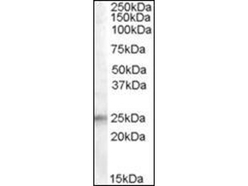 Western Blotting (WB) image for anti-Insulin-Like Growth Factor Binding Protein 6 (IGFBP6) (Internal Region) antibody (ABIN615446)