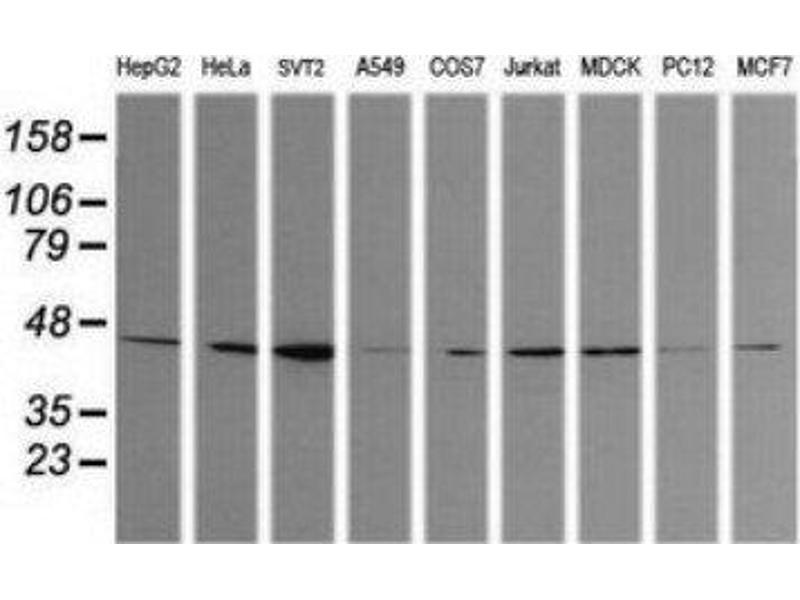 Western Blotting (WB) image for anti-Calreticulin 3 (CALR3) antibody (ABIN4287504)