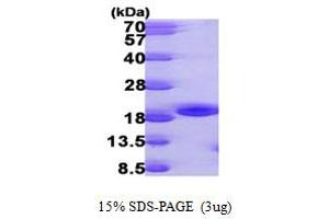 Image no. 1 for NME/NM23 Nucleoside Diphosphate Kinase 3 (NME3) (AA 22-169) protein (His tag) (ABIN667337)