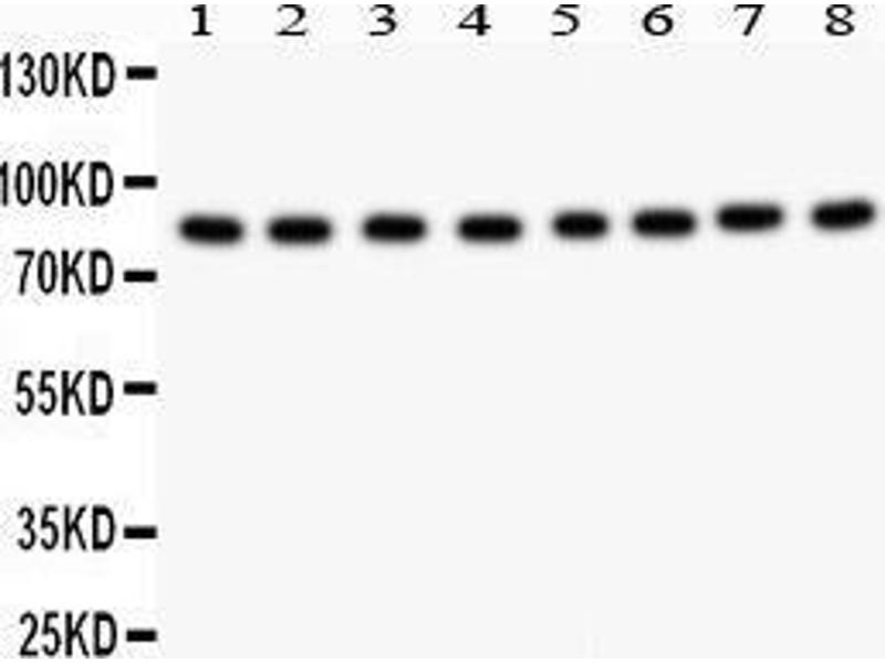 Western Blotting (WB) image for anti-BRAF antibody (V-Raf Murine Sarcoma Viral Oncogene Homolog B1) (AA 38-230) (ABIN3043761)