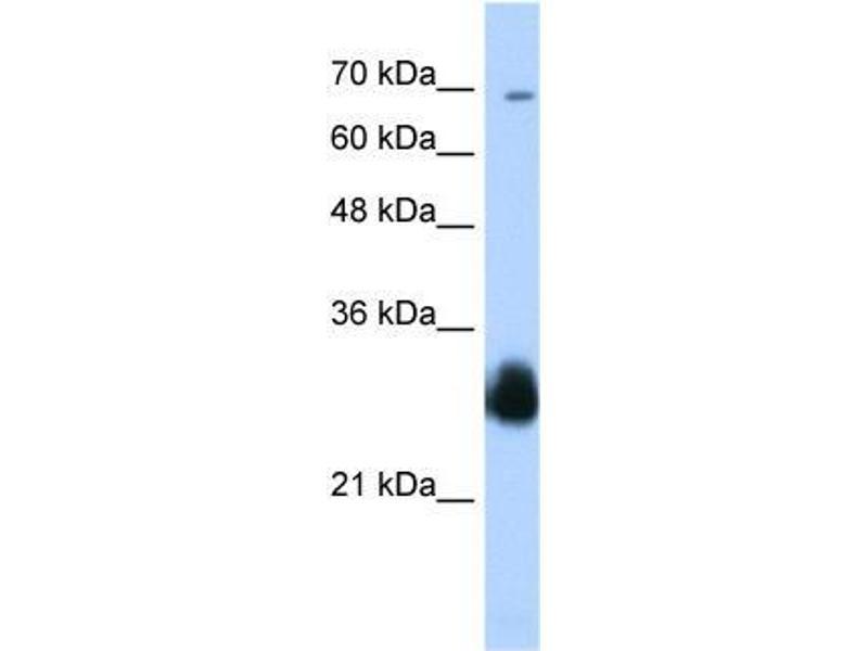 Western Blotting (WB) image for anti-Ring Finger Protein 138 (RNF138) (C-Term) antibody (ABIN1108890)
