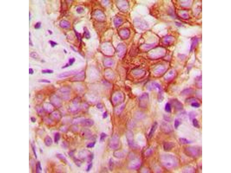 Immunohistochemistry (IHC) image for anti-FYN Oncogene Related To SRC, FGR, YES (FYN) (C-Term), (pTyr530) antibody (ABIN2704810)