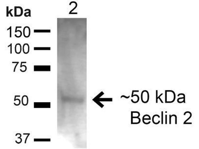 Image no. 3 for anti-Beclin-1-Like Protein 1 (BECN1L1) antibody (Streptavidin) (ABIN2868791)