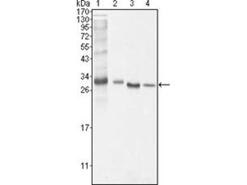 Western Blotting (WB) image for anti-BCL10 antibody (B-Cell CLL/lymphoma 10) (ABIN1105500)