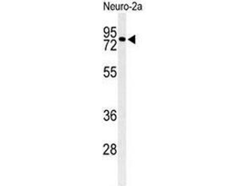 Western Blotting (WB) image for anti-Cirrhosis, Autosomal Recessive 1A (Cirhin) (CIRH1A) (N-Term) antibody (ABIN951532)