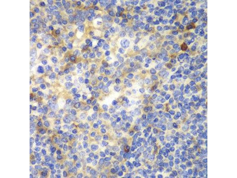 Immunohistochemistry (IHC) image for anti-ZAP70 antibody (zeta-Chain (TCR) Associated Protein Kinase 70kDa) (ABIN1875382)