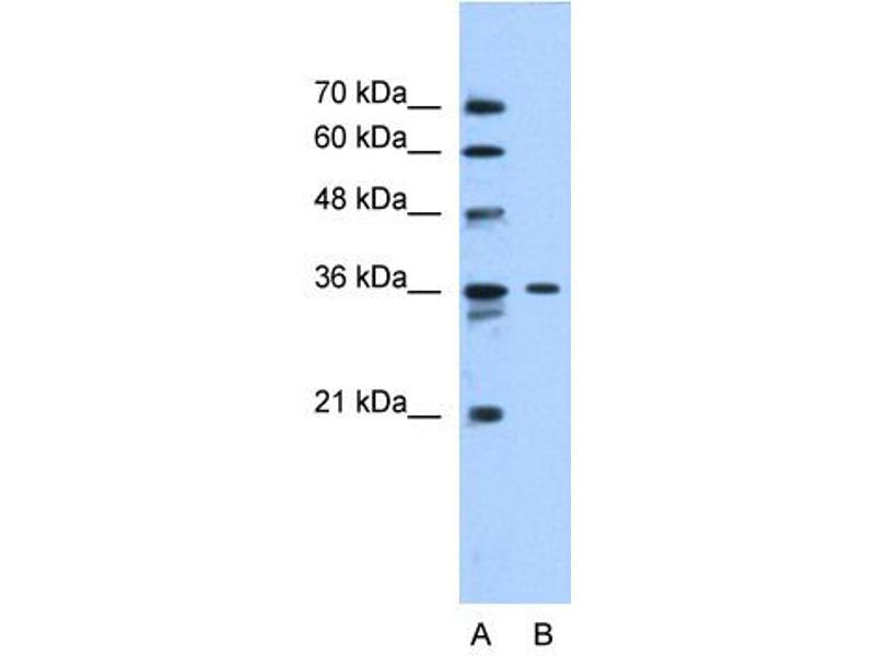 Western Blotting (WB) image for anti-Solute Carrier Family 35 (UDP-N-Acetylglucosamine (UDP-GlcNAc) Transporter), Member A3 (SLC35A3) (Middle Region) antibody (ABIN310521)