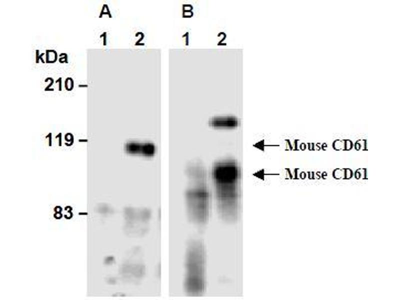 Western Blotting (WB) image for anti-Integrin beta 3 (ITGB3) antibody (ABIN1449278)