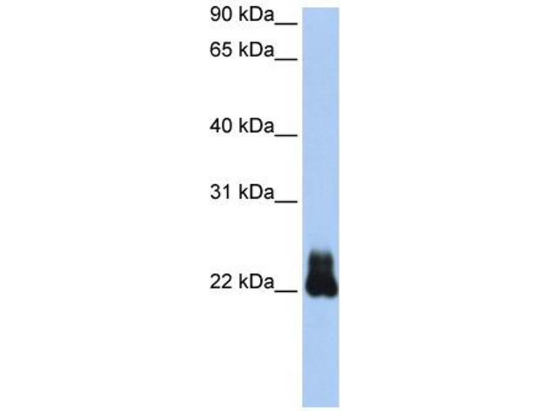 Western Blotting (WB) image for anti-RHOD (N-Term) antibody (ABIN310333)