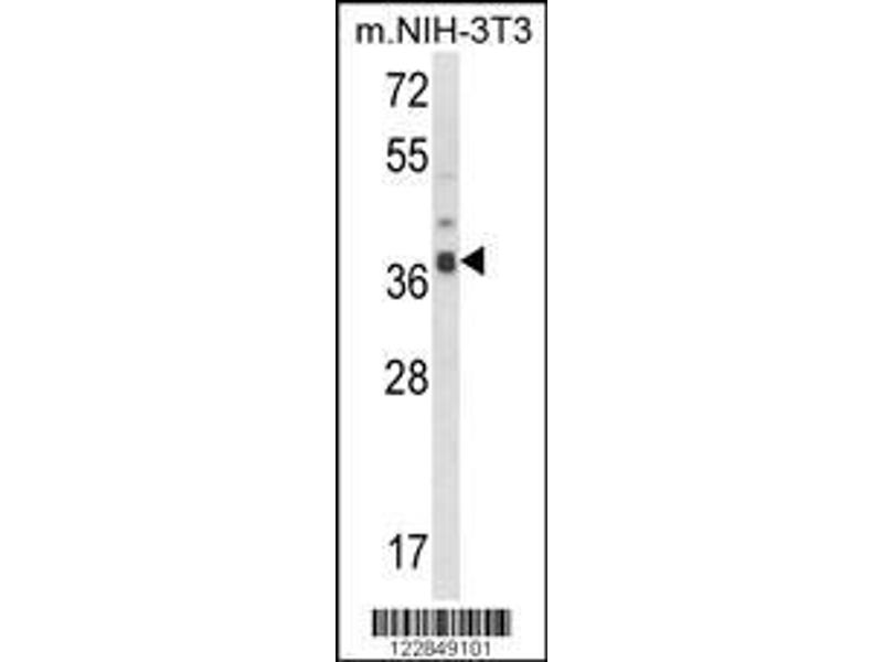 Western Blotting (WB) image for anti-Actin Related Protein 2/3 Complex, Subunit 1B, 41kDa (ARPC1B) (AA 159-188), (Center) antibody (ABIN652700)
