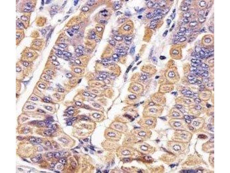 Immunohistochemistry (IHC) image for anti-Receptor Tyrosine Kinase-Like Orphan Receptor 2 (ROR2) (AA 750-800) antibody (ABIN3028972)
