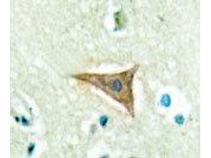 Immunohistochemistry (IHC) image for anti-Ephrin A5 antibody (EFNA5) (Pro63) (ABIN446921)