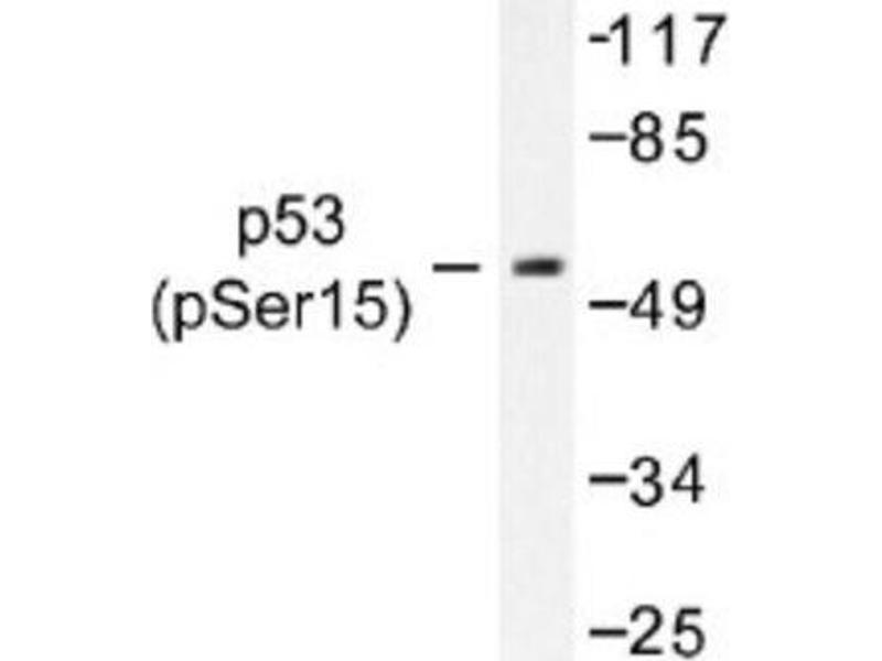 Western Blotting (WB) image for anti-p53 antibody (Tumor Protein P53) (pSer15) (ABIN4342743)