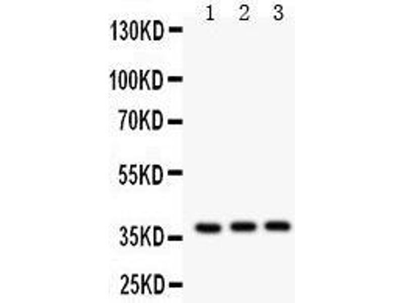 Western Blotting (WB) image for anti-Interleukin 3 (IL-3) (AA 28-166) antibody (ABIN3043247)