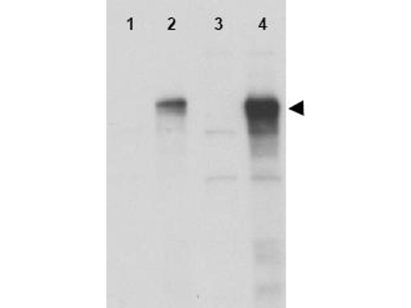 Western Blotting (WB) image for anti-GLI1 antibody (Zinc Finger Protein GLI1) (C-Term) (ABIN153487)