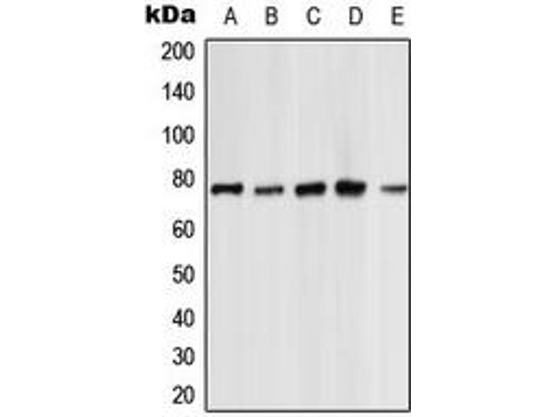 Western Blotting (WB) image for anti-Protein Kinase C, zeta (PRKCZ) (C-Term) antibody (ABIN2705134)