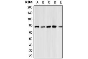 Western Blotting (WB) image for anti-PKC zeta antibody (Protein Kinase C, zeta) (C-Term) (ABIN2705134)