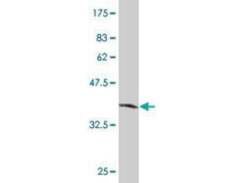 Western Blotting (WB) image for anti-SLC2A4 Regulator (SLC2A4RG) (AA 178-270) antibody (ABIN394333)