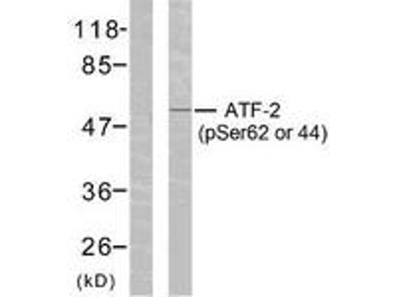 Western Blotting (WB) image for anti-ATF2 antibody (Activating Transcription Factor 2) (pSer62) (ABIN1531775)
