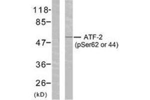Western Blotting (WB) image for anti-Activating Transcription Factor 2 (ATF2) (AA 29-78), (pSer62) antibody (ABIN1531775)