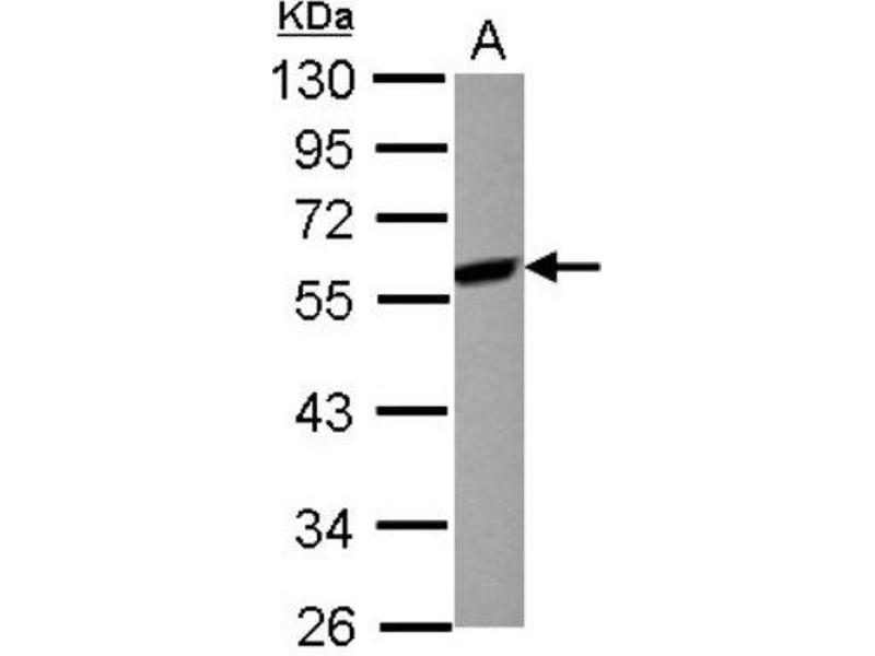 Western Blotting (WB) image for anti-MAP2K7 antibody (Mitogen-Activated Protein Kinase Kinase 7) (Center) (ABIN4334822)